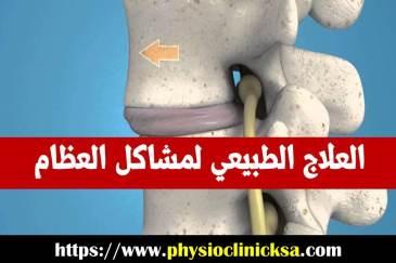 العلاج الطبيعي لمشاكل العظام