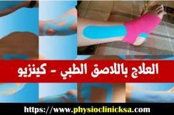العلاج باللاصق الطبي - كينزيو