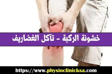خشونة الركبة - تآكل الغضاريف في الرياض